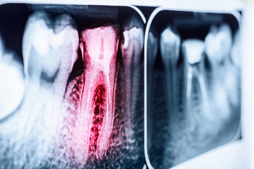 Wurzelbehandlung - ZahnarztAubing Dr. Johannes Stern München